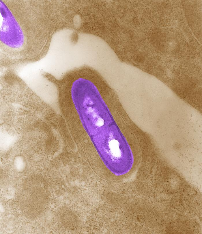 Figure 1: Electron micrograph of a Listeria monocytogenes bacterium in tissue. Source: Public Health Image Library, Center for Disease Control, Dr. Balasubr Swaminathan and Peggy Hayes (2002).