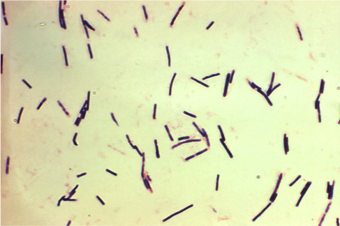 Figure 1: An image of Clostridium perfringens under the microscope. They are rod-shaped and stain purple under the gram stain, indicating that this bacteria is Gram positive (has a peptidoglycan layer not surrounded by an outer membrane) . Source: Centers for Disease Control and Prevention 2015.