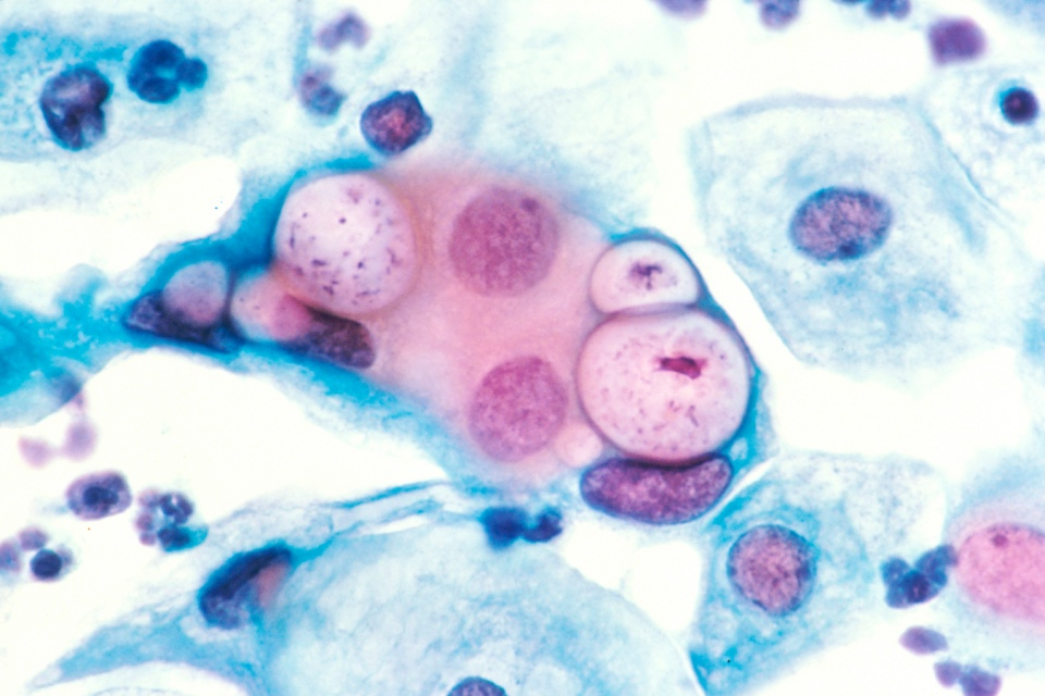 Figure 1: Human pap smear showing cells infected with Chlamydia trachomatis at 500x magnification, stained with haematoxylin and eosin (Photo source: PLOS Pathogens).