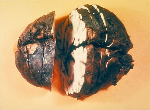 Figure 5: This is your brain on anthrax: this poor soul suffered from hemorrhagic meningitis as a result of inhalation of the spores. Note the blackened outside of the brain, resulting from the anthrax-laden blood. (Source: CDC 1966 ID#1121)